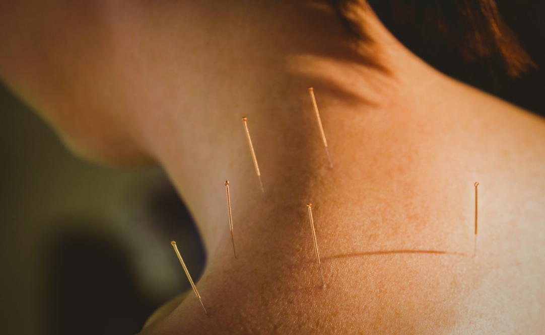 can acupuncture prevent miscarriage